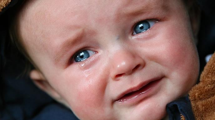 やけどしてあまりの痛さに泣きじゃくる赤ちゃん