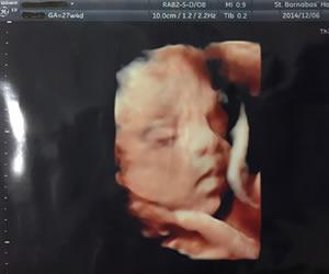 妊娠27週目の4Dエコー写真