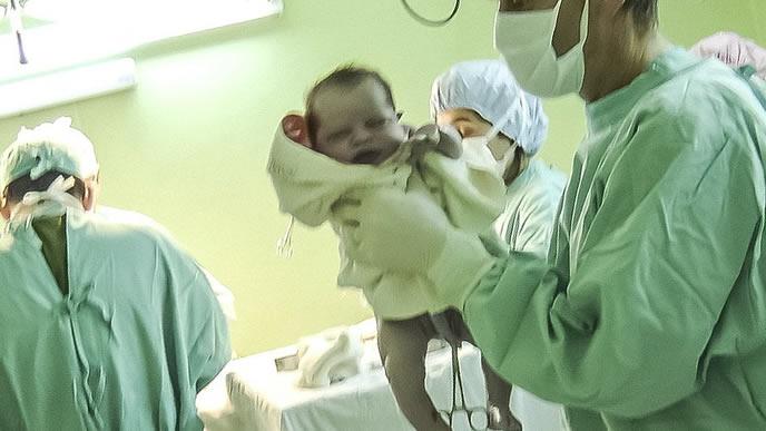 生まれたての赤ちゃんを抱きかかえる産婦人科の医師