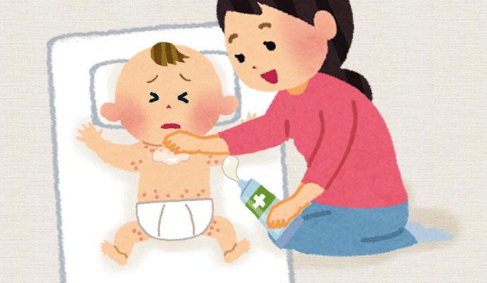 3ヶ月の赤ちゃんの湿疹