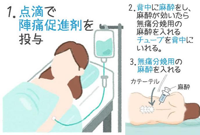 無痛分娩の進め方