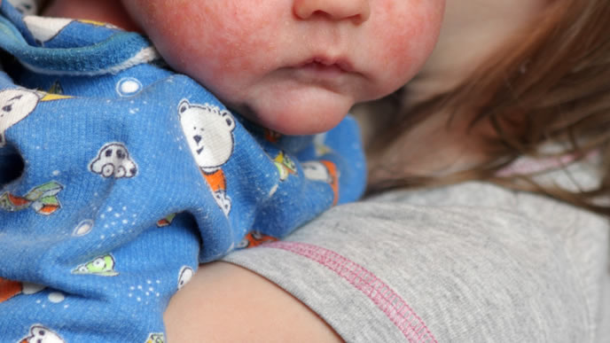 高熱が下がり発疹が目立ち始めた赤ちゃん
