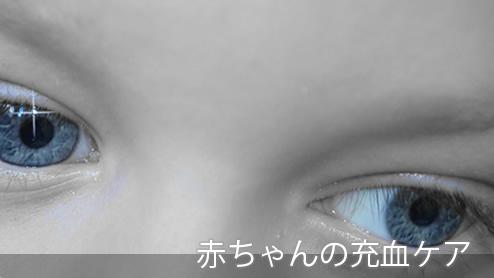 赤ちゃんの目が充血する原因は?充血おめめや目やにケア