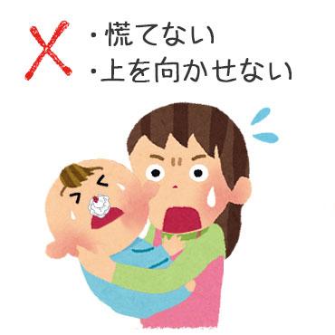 NG鼻血の止め方