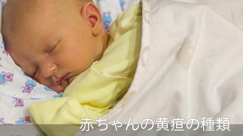 赤ちゃんの黄疸は心配ない?症状や治療が必要な黄疸の違い