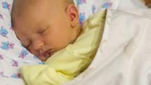 160527_baby-jaundice2