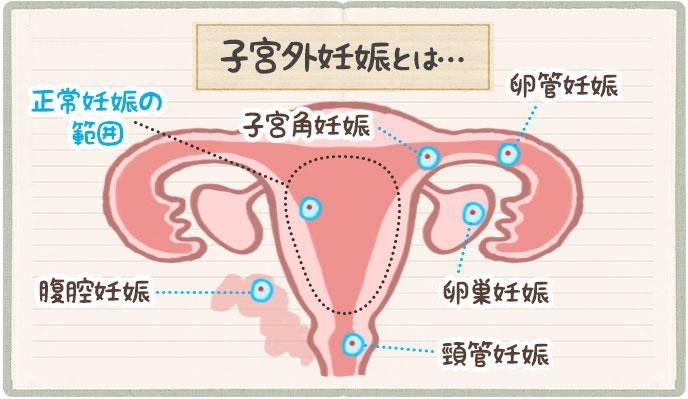 子宮外妊娠の仕組み