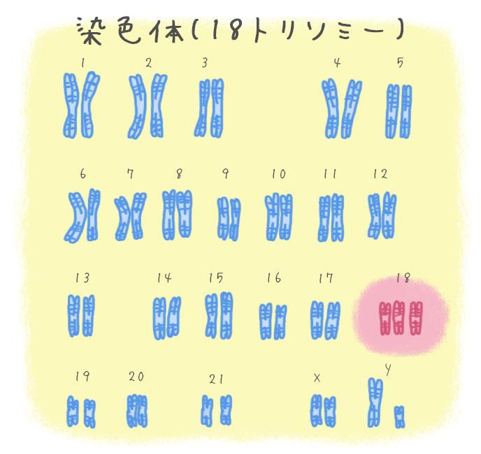 エドワーズ症候群(18トリソミー)の染色体