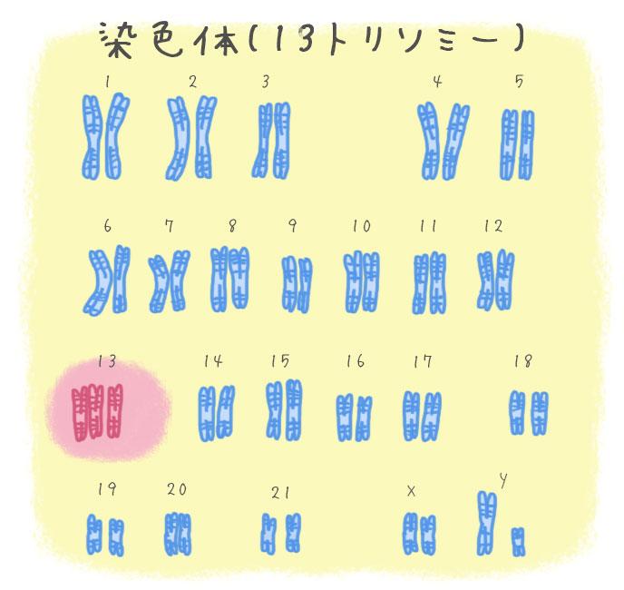 パトウ症候群(13トリソミー)の染色体