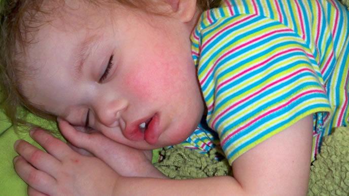 中耳炎のため熱がでた男の子
