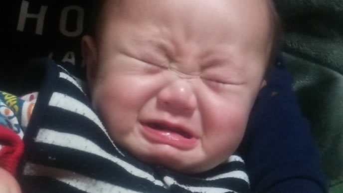 とびひが痛くてギャン泣き中の赤ちゃん