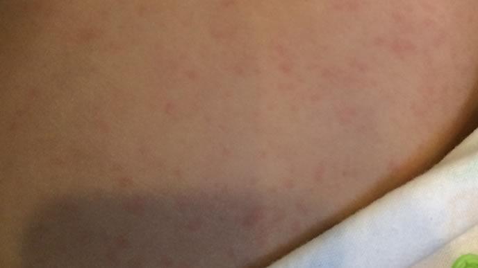 湿疹が出て寝付けない子供