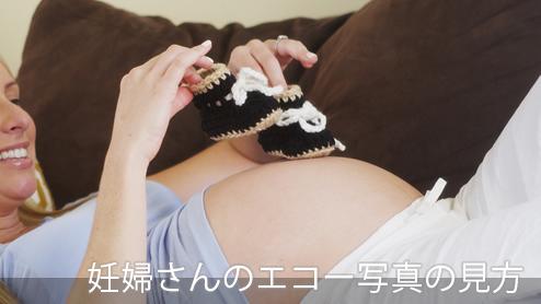 妊婦のエコー写真の見方、性別診断、保存方法まとめ