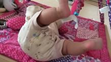 13トリソミーの症状は?胎児の特徴・発症率や生存率