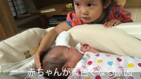 赤ちゃんの黄疸の原因はビルリビン?黄色くなる黄疸の仕組み