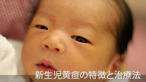 黄疸の症状や種類と黄疸になった赤ちゃんの治療方法