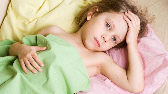 蕁麻疹の出ている子供