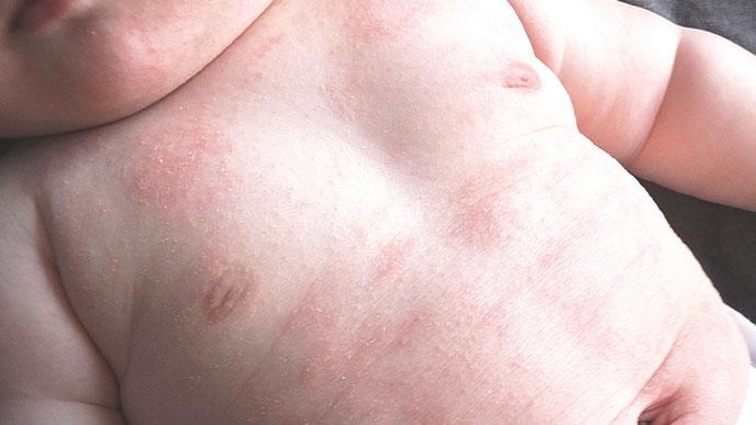 アレルギー反応が出ている赤ちゃん