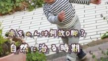 赤ちゃんのO脚が自然に治る時期は?月齢毎の脚の成長