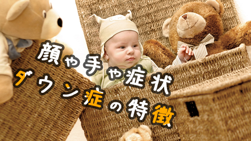 ダウン症の特徴は?赤ちゃんの顔や手・症状の特徴