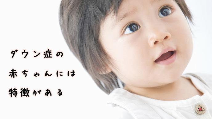 ダウン症の赤ちゃんの表情