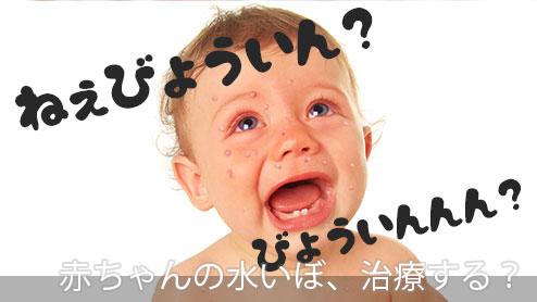 赤ちゃんの水いぼの治療法は?治癒を早める家庭でのケア