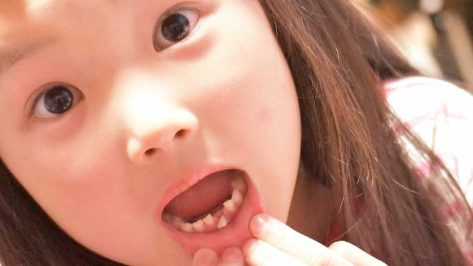 下の歯が抜けそうになってビックリしている女の子