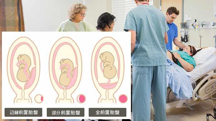 3タイプの前置胎盤