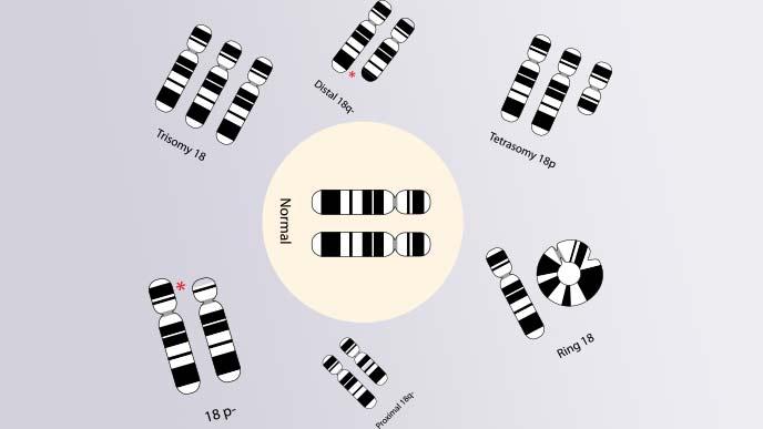 21トリソミー以外の異常な染色体のイラスト