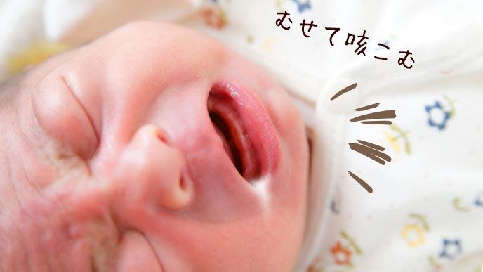 授乳中にむせて咳き込む赤ちゃん