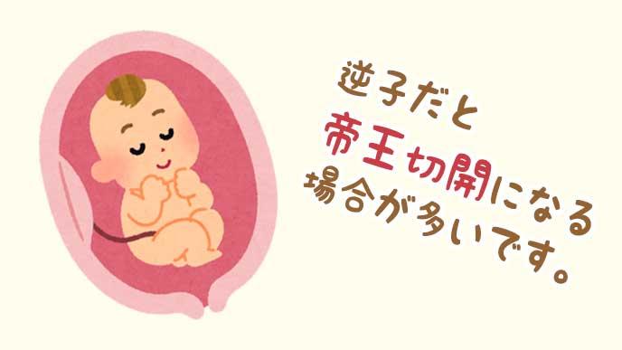 お腹の中で逆子になっている赤ちゃんのイラスト