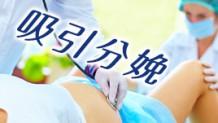 吸引分娩になる母体と赤ちゃんの状態とは?頭の形は治る?