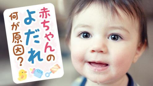 赤ちゃんのよだれの原因は?心配のない症状と関係する病気