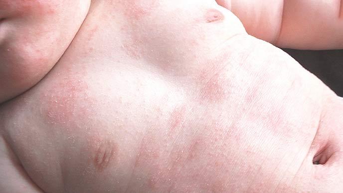 アトピー性皮膚炎の赤ちゃん