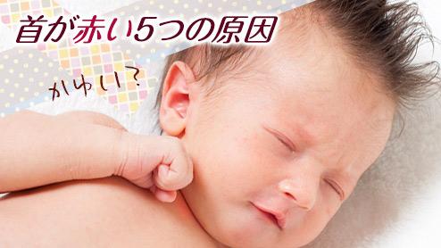 赤ちゃんの首が赤い5つの原因~肌トラブルは首から起こる?