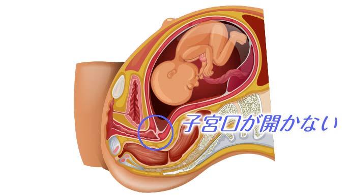 妊婦の胎児状態と子宮口の解剖図