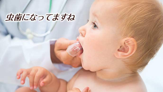医者に歯を調べてもらう赤ちゃん