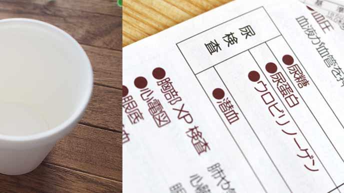 健診の説明用紙と紙コップ